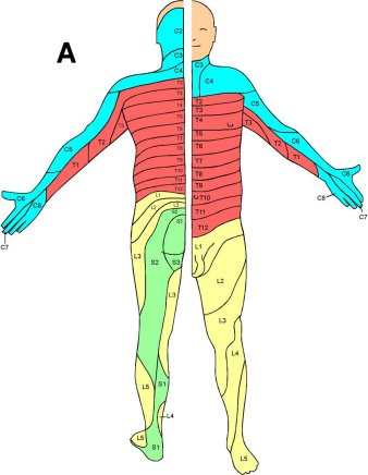 diskbråck i nacken symtom