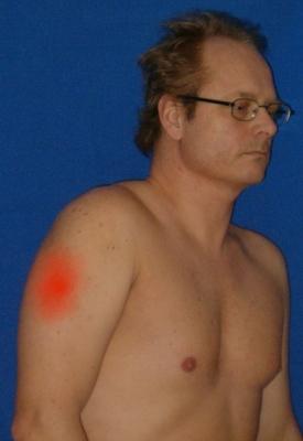 ont i överarmens muskler